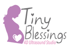 Tiny Blessings 4d Ultrasound