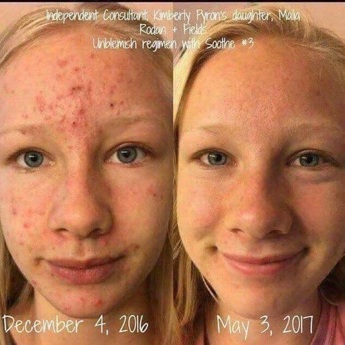 Unblemished for acne with Soothe for Sensitivity, 6 month useage