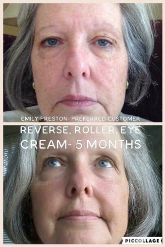 Reverse with roller and eye cream, 5 month useage