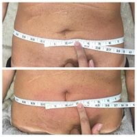 Cryoskin, before and after cryoslimming treatment of abdominal area. 1 treatment with 1' loss.