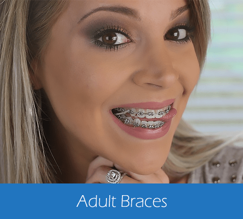 Gallery Image Adult-Braces.png