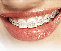 Gallery Image Ceramic-Braces.png