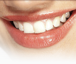 Gallery Image Clear-Aligners.png