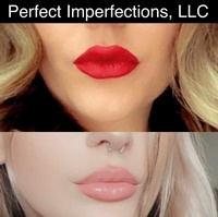 Perfect Imperfections, LLC