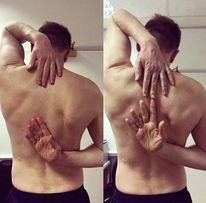 Range of Motion. This is a test used for adhesive capsulitis (frozen shoulder)
