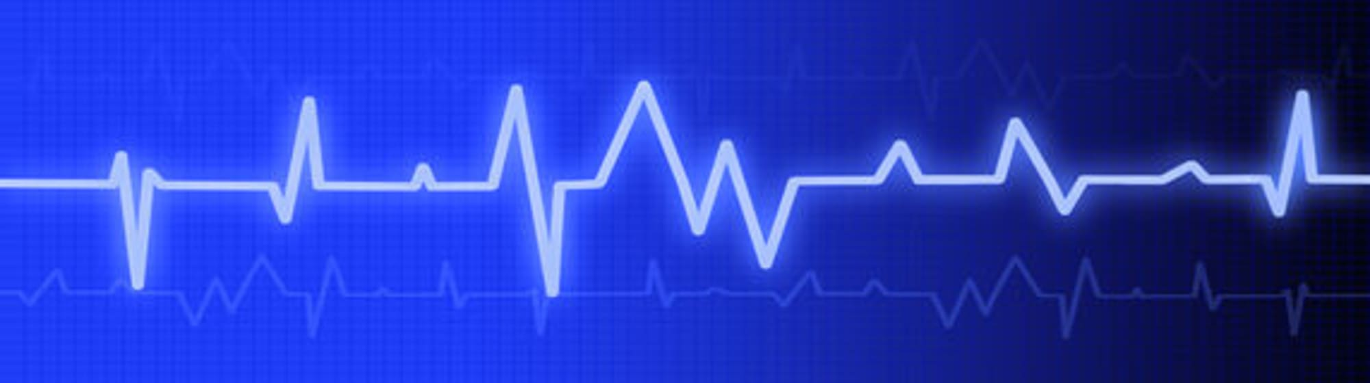 heartbeat-monitor-37619927-w2000.jpg
